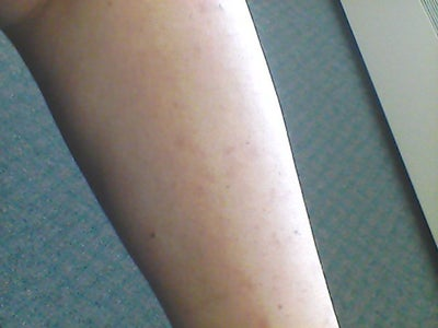 how to get rid of spots on arms fast