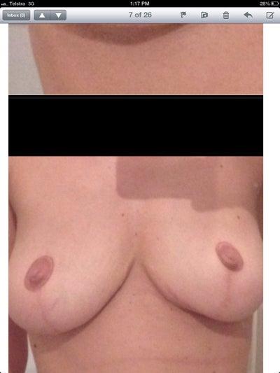 Thumbnail nude photo gallery