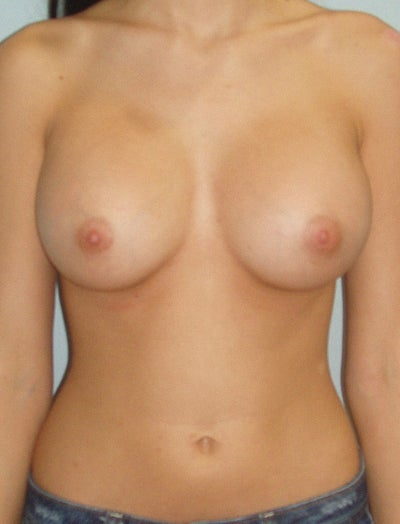 Best Breast augmentation in Washington, DC - Yelp