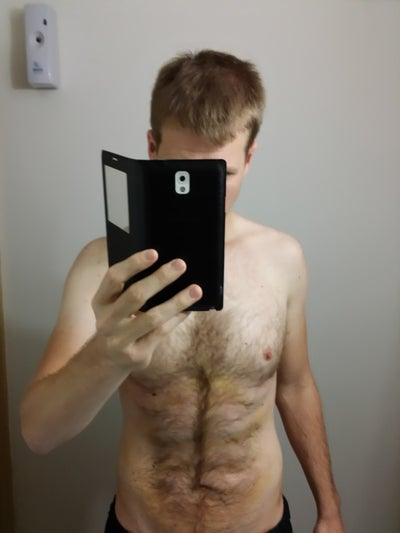 32 year old fit male vaser high definition on abs and flanks melbourne au vaser liposuction. Black Bedroom Furniture Sets. Home Design Ideas