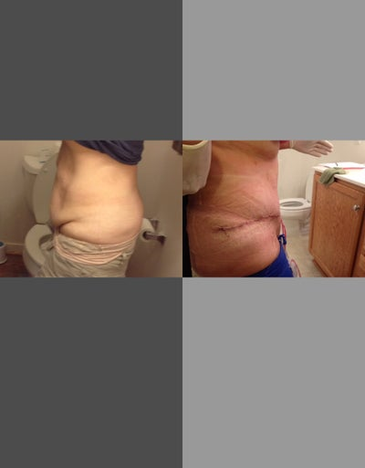 how to get rid of seroma after tummy tuck