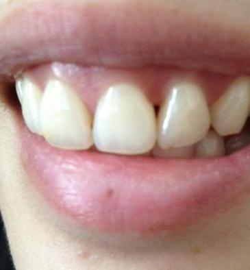 Will gum grow back to cover black triangles in front teeth? (photo)