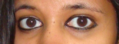 Treatment for Sunken Eyes at 24? (photo) Doctor Answers, Tips