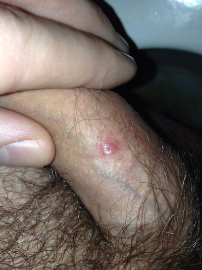 White Puss Coming Out Of Penis 93