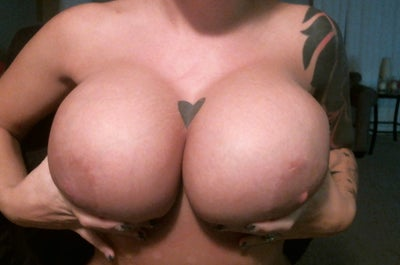 Breast Augmentation Before and After Photos Miami