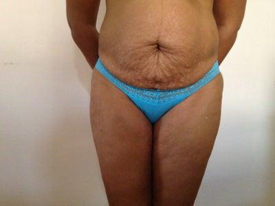 Cost Of Brazilian Butt Lift 117
