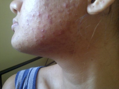 how to get rid of bumps on face not acne