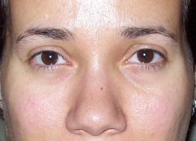 Does not facial edema burning eyes confirm. join