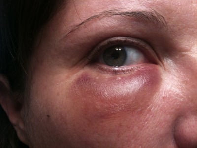 Is This Tear Trough Swelling Normal? Doctor Answers, Tips
