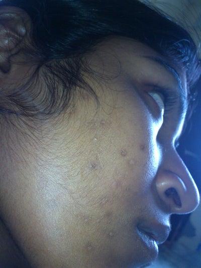 locacid taches acné 5eme