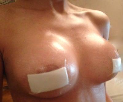Edema swelling - uptodatecom