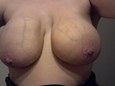 cost of breast implants in columbus ohio