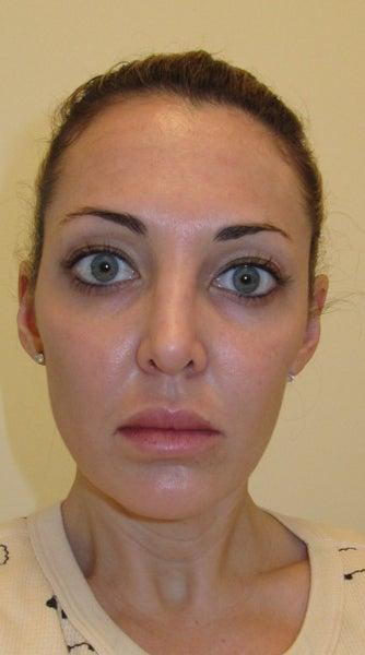 Asymmetry Facial 117