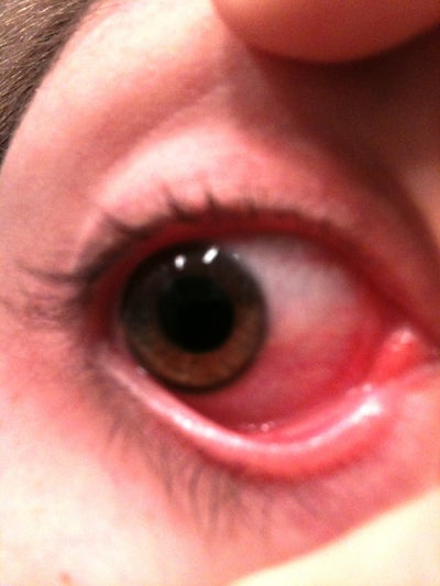 how to get bloodshot eyes temporarily