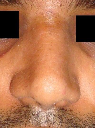 how to make big nostrils smaller