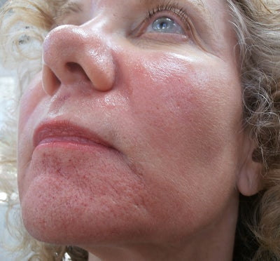 facial and treatment pores Large
