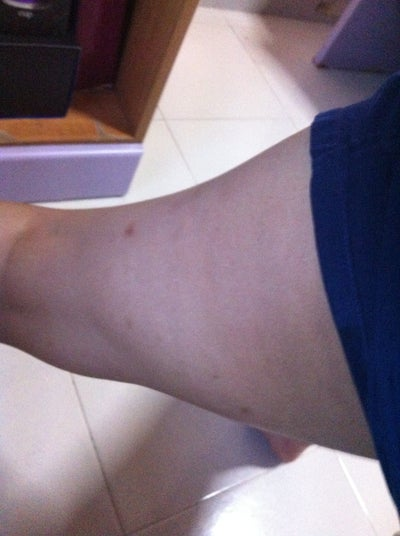 eczema on legs black people - photo #29