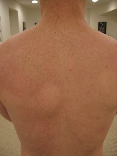 of Action for Removing Large Lipoma Near Spine? Doctor Answers, Tips
