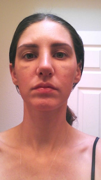 How to correct asymmetrical nostrils after rhinoplasty ...