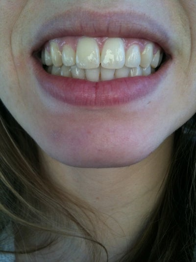 How Can I Fix My Big Front Teeth? Dentist Answers, Tips