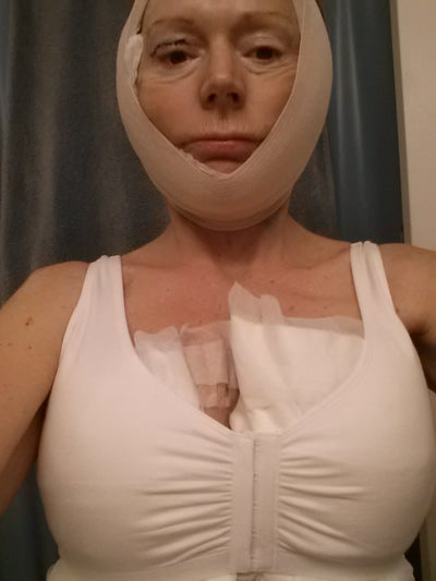Georgia Breast Lift Doctor 25