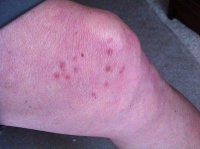Scar from shingles on my leg (Photo) Doctor Answers, Tips