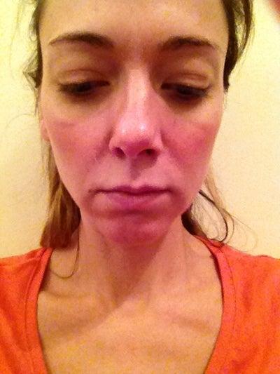 Advice/Treatment Options for Sunken Cheeks/Marionette ... | 400 x 533 jpeg 35kB
