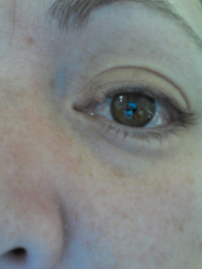 Have a Mole Directly on my Eyelash Line of my Eyelid. Who Can Remove