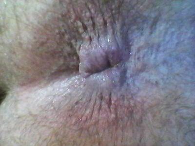 Bumps around the anus