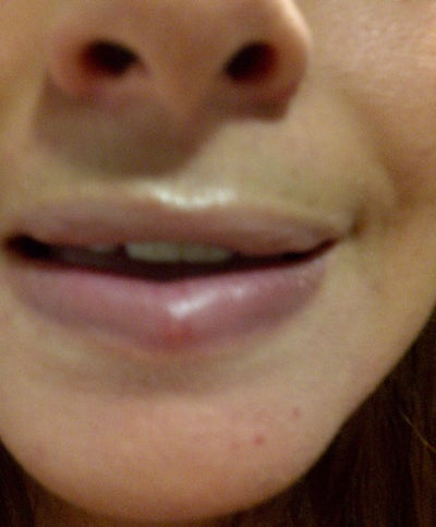 how to get rid of bump inside lip