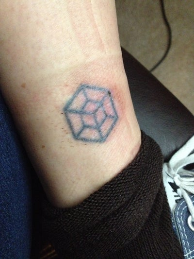 laser tattoo removal small black ink tattoo on ankle