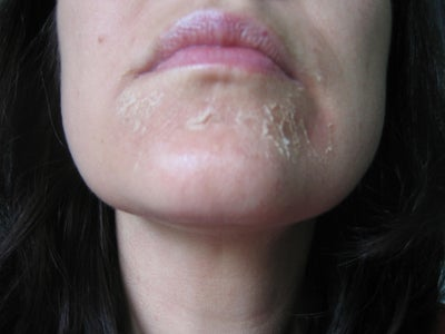 how to get rid of cold sores on lips gif