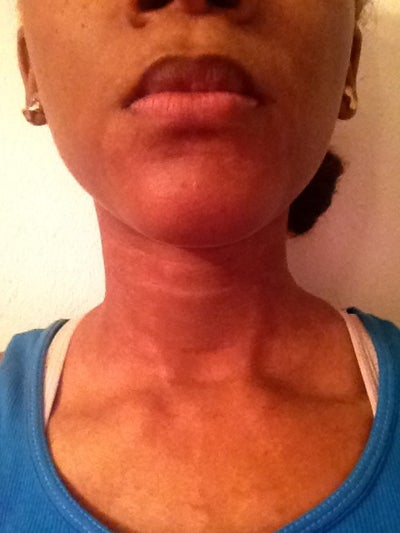 How Do You Fix Skin Discoloration If It Is All Over The