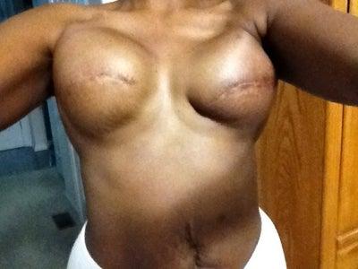 stark naked women