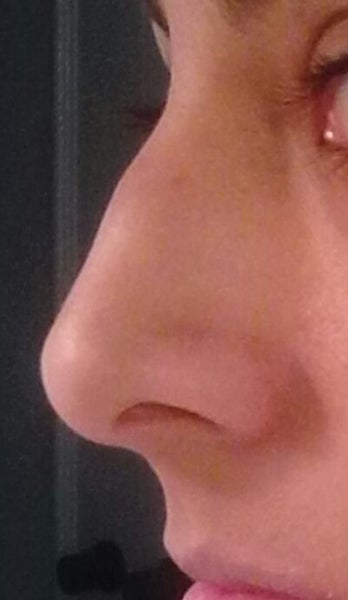 How can i get rid of the bump on my nose without surgery 6e