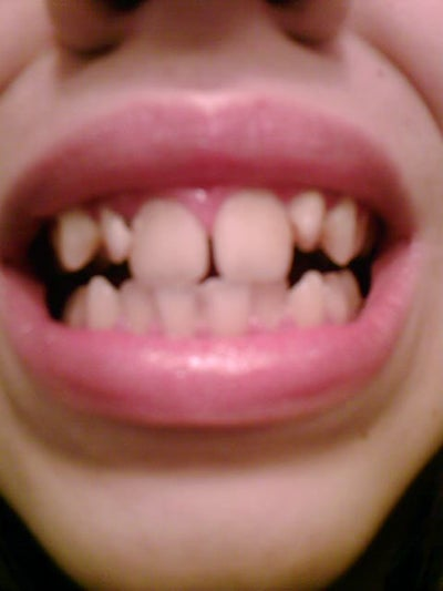 What To Do With Gapped And Two Big Front Teeth? Dentist