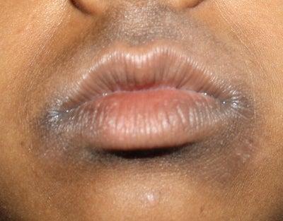 Dark Skin Around The Mouth 100