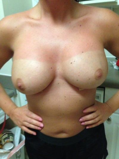 breast augmentation porn jpg 1200x900