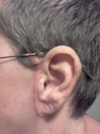 Have Swelling in Front of Both Ears After a Minilift Almost 2 Years