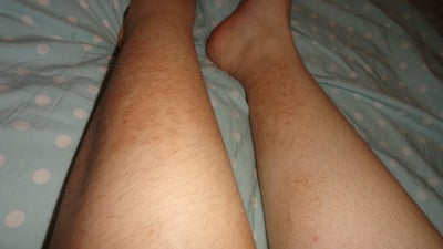 how to get rid of shaving scars on legs