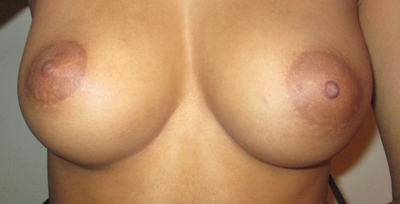Different boob colors usually easy