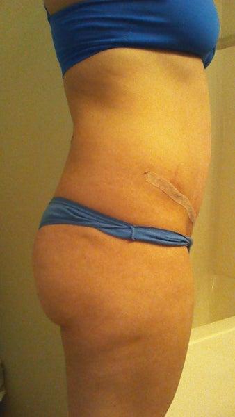 Tummy Tuck Doctors In Virginia Beach