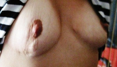 Improving scar tissue within a breast
