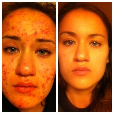 Accutane reviews