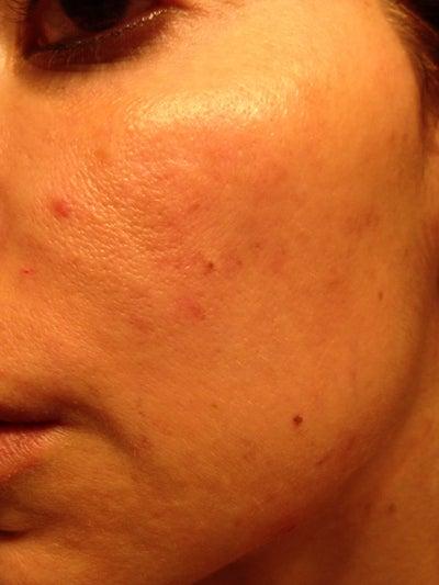 Can ciprofloxacin cause skin rash