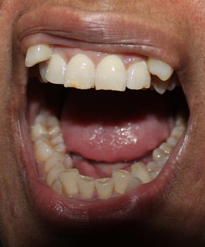 can invisalign work for my overcrowded teeth photo