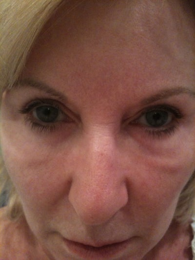 Under Eye  Midface  Swelling After Selphyl Injection Under