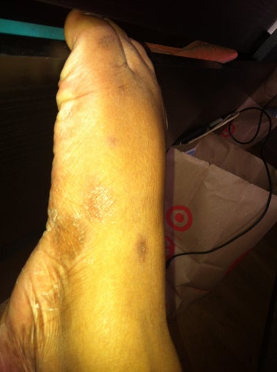 Brown Spots on Feet, What Are They? (photo) Doctor Answers ...
