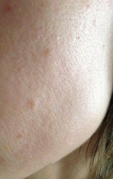 how to get rid of open pores on your face
