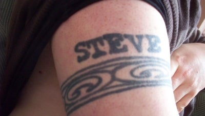 What can i expect for tattoo removal of a name in black for Steve o tattoo removal